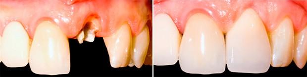 До и после установки импланта