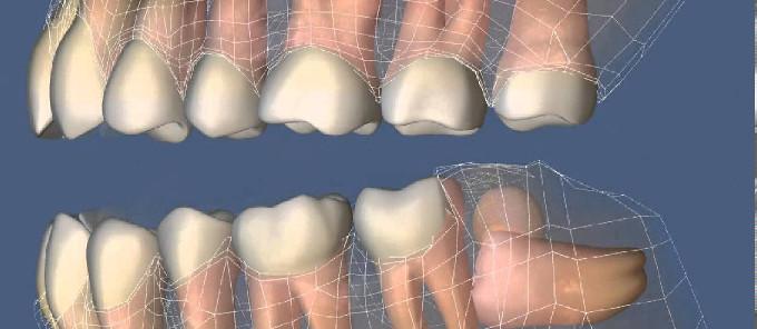 Ретенция зуба