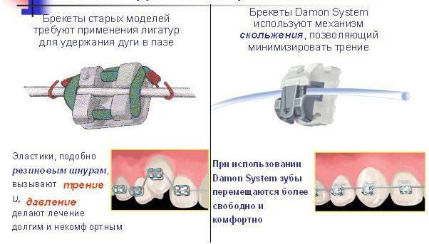 Отличия между моделями