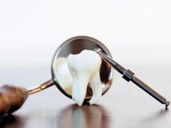 Какие рекомендации после удаления зуба дают врачи?