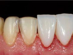 Когда применяется реставрационное отбеливание зубов?