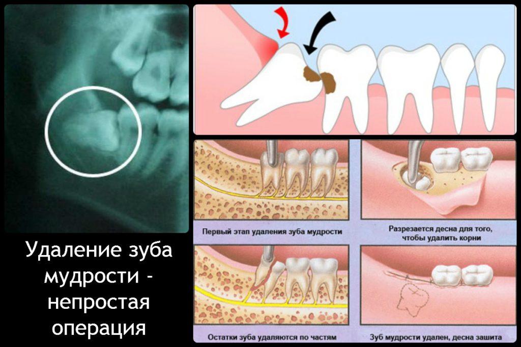 Операция по удалению зуба мудрости