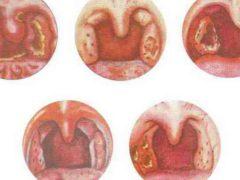 Почему возникает стоматит на миндалинах?