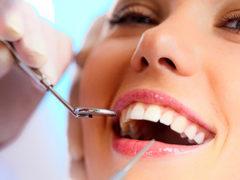 Зачем делают профессиональную чистку зубов?