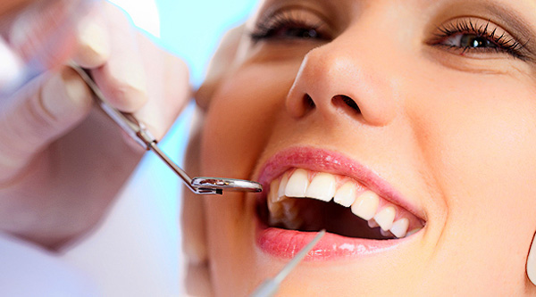 Процедура очистки зубов