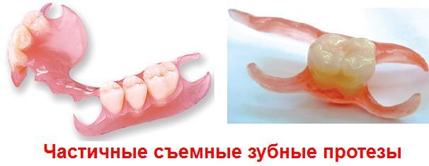съёмные зубные протезы фото