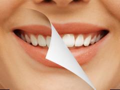 Виды профессионального отбеливания зубов