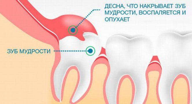 Как удаляют зуб мудрости под десной