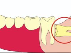 Операция по удалению ретинированного дистопированного зуба