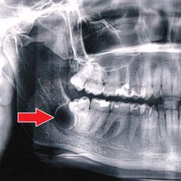 Рентген фолликулярной кисты