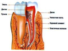 Как проводится лечение гингивита?