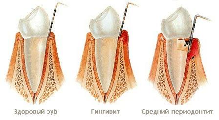 Отличия гингивита от пародонтита