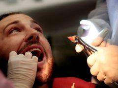 Особенности удаления зуба мудрости на нижней челюсти