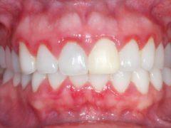 Характерные симптомы хронического гингивита