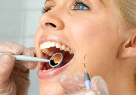 Очистка зубных отложений