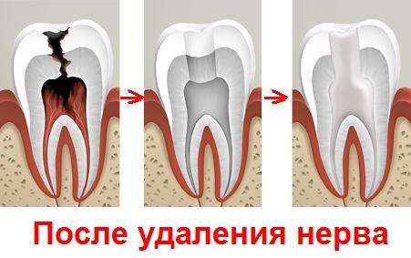 Зуб без нерва