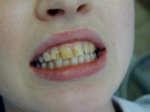 Потемнение на зубах у ребенка
