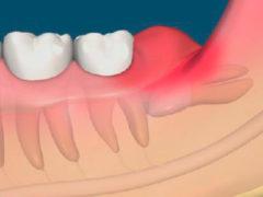 Что лучше — удалять или лечить зуб мудрости?
