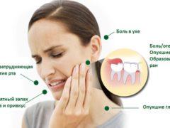 Операция по удалению зуба мудрости на верхней челюсти