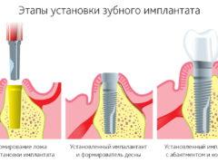Процедура установки импланта после удаления зуба