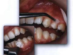 Средства помогающие против зубного камня