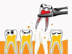 Обзор показаний к удалению зуба