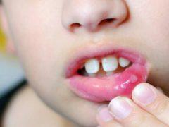 Разновидности стоматита на губах