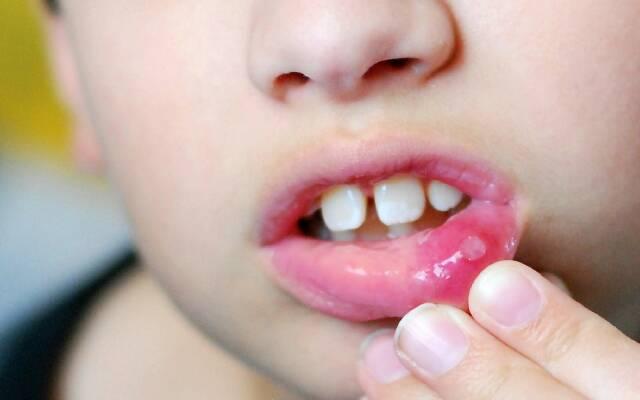 Язва на внутренней стороне губы
