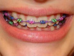 Модный ортодонтический аксессуар — цветные брекеты