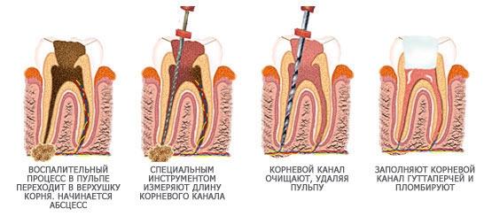 Опухла щека зуб не болит чем лечить