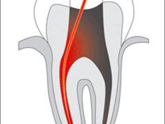 Как происходит удаление нерва зуба?