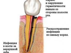 Как проходит процедура удаления корня зуба?