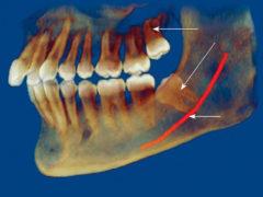 Особенности удаления 8 зуба