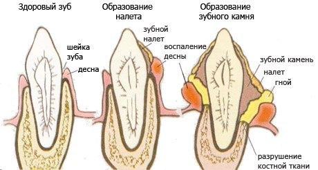 Последствия зубного налета