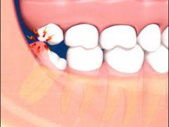 Симптомы прорезания зуба мудрости