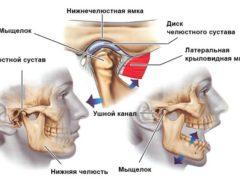 Как устранить подвывих челюсти?