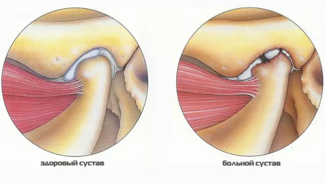 bolnoy-sustav