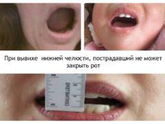 Из-за чего происходит вывих челюсти?