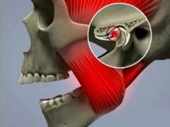 Что делать если щелкает или хрустит челюсть?