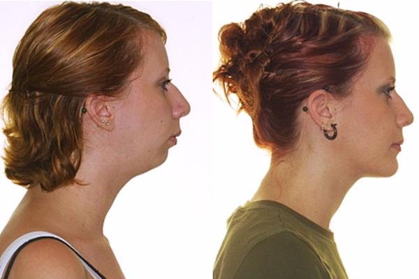 Расширение челюсти: микрогнатия, микрогения, процедура