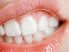 Как устранить боль в десне под зубом при нажатии?
