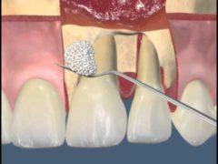 Что такое лоскутная операция в стоматологии?