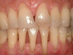 Что делать если оголяются корни зубов?