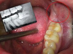 Что делать если растет зуб мудрости и болит десна?