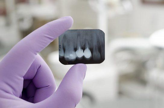 Десна на рентгеновском снимке