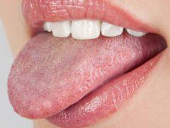 Почему возникает молочница во рту у взрослых?