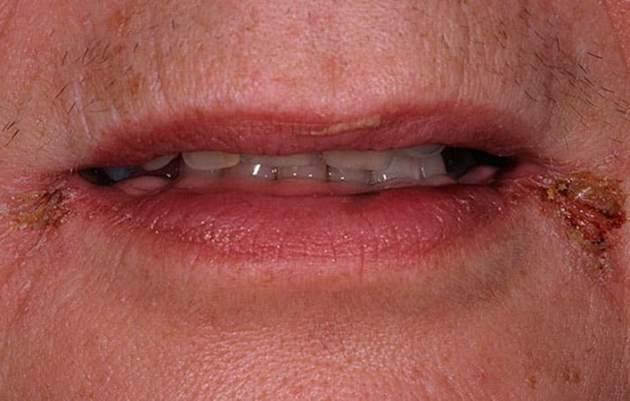Фото ангулярного стоматита у взрослого человекка