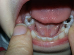 Требуется ли лечение пульпита молочных зубов и как оно проводится?