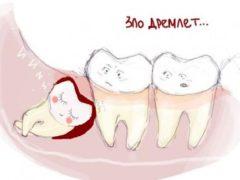 Длительность боли и последствия после вырывания зуба мудрости