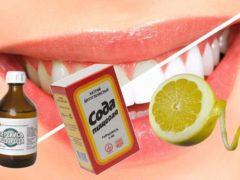 Быстрое и эффективное отбеливание зубов в домашних условиях